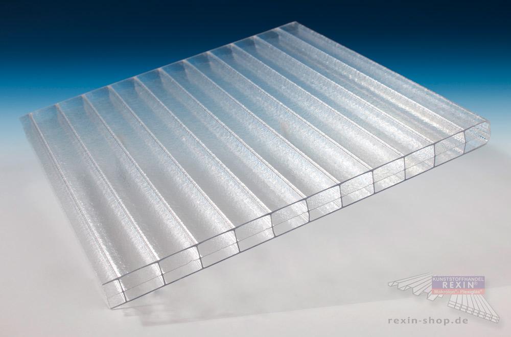 REXOclear 16mm PC-Stegplatte Eiskristall - Sichtschutz mit besonderem Look.